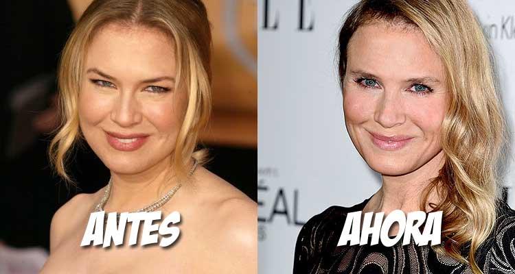 Renée Zellweger se cambia la cara a golpe de bisturí
